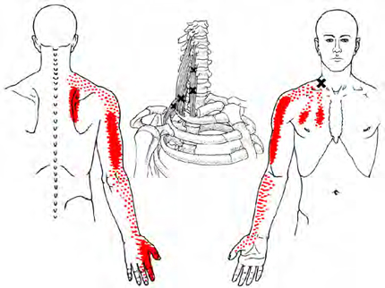 Hands-On Healing | Physical Therapy | Trigger Point Dry ...